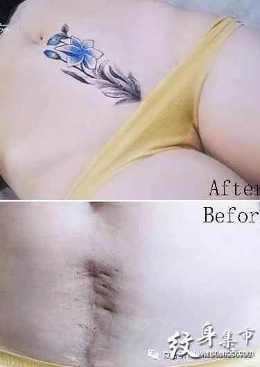 剖腹产纹身,剖腹产疤痕遮盖, 剖腹产疤痕遮盖图案大全